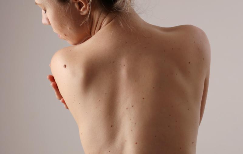 Smerter i ryggen kvinde følelser rygsmerter